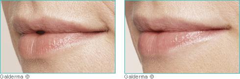 Protection des lèvres
